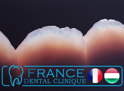 France Dental Clinique