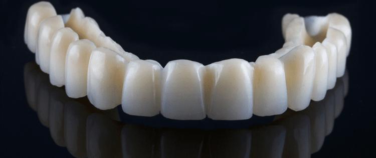 prothèse dentaire pmma